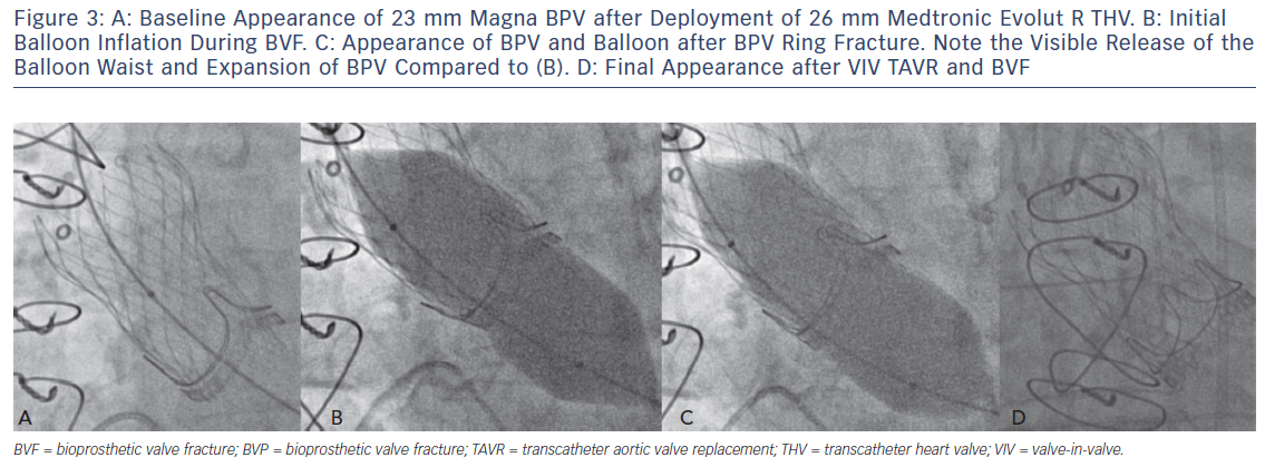 Figure 3: A: Baseline Appearance of 23 mm Magna BPV