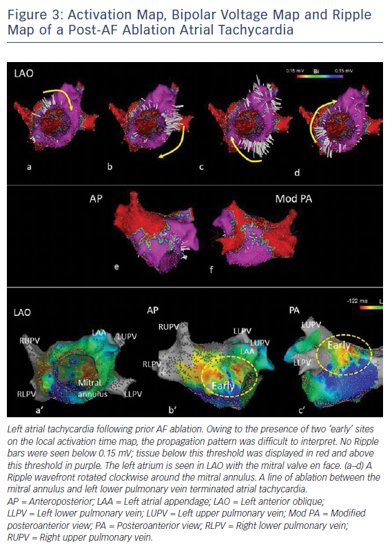 Activation Map, Bipolar Voltage Map and Ripple Map of a Post-AF Ablation Atrial Tachycardia