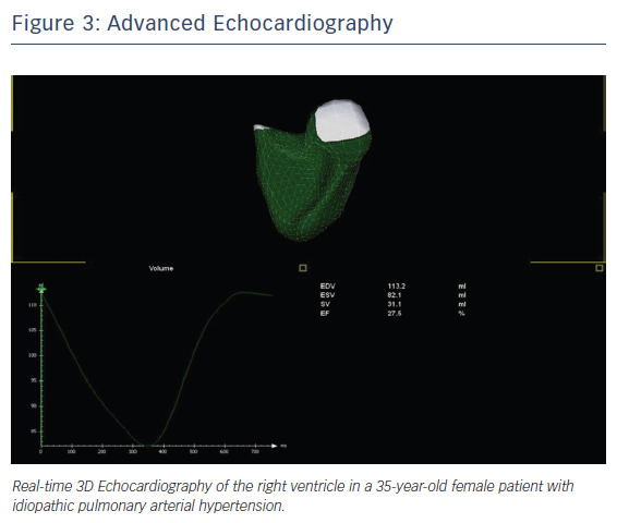 Figure 3: Advanced Echocardiography