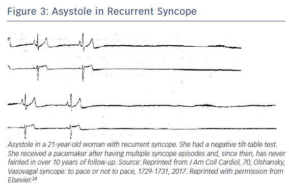 Figure 3: Asystole in Recurrent Syncope