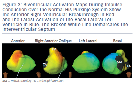 Figure 3: Biventricular Activaton Maps During ImpulseConduction Over the Normal His-Purkinje System Showthe Anterior Right Ventricular Breakthrough in Redand the Latest Activation of the Basal Lateral LeftVentricle in Blue. The Broken White Line Demarcates theInterventricular Septum