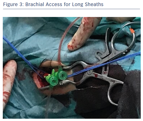Brachial Access for Long Sheaths