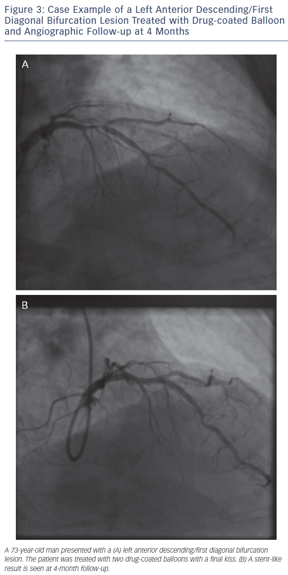 Figure 3: Case Example of a Left Anterior Descending/First Diagonal Bifurcation Lesion Treated with Drug-coated Balloon and Angiographic Follow-up at 4 Months