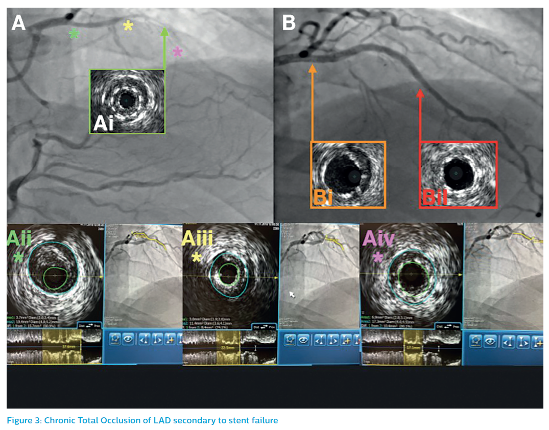 Chronic Total Occlusion of LAD secondary to stent failure