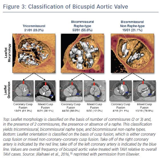 Figure 3: Classification of Bicuspid Aortic Valve