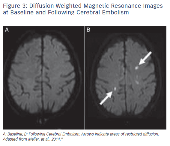 Figure 3: Diffusion Weighted Magnetic Resonance Images at Baseline and Following Cerebral Embolism