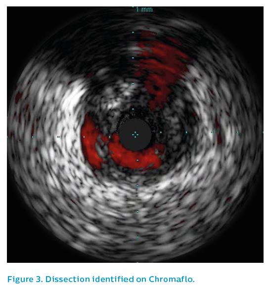 Figure 3. Dissection identified on Chromaflo