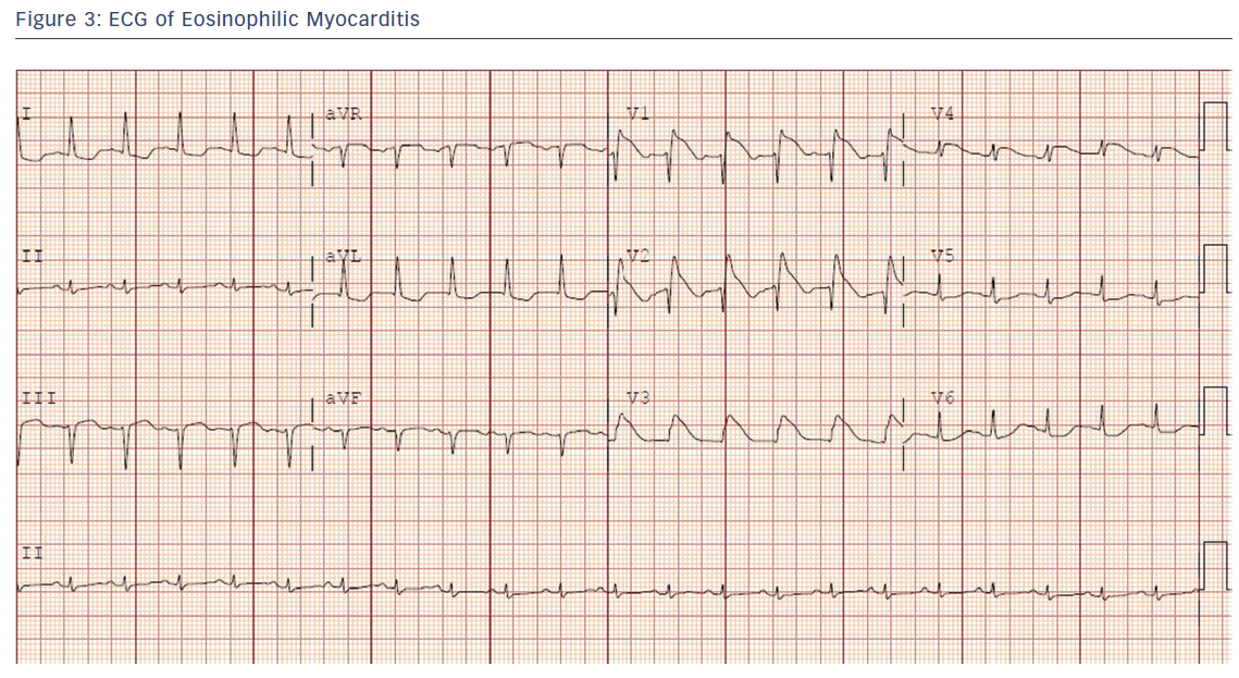 Figure 3: ECG of Eosinophilic Myocarditis