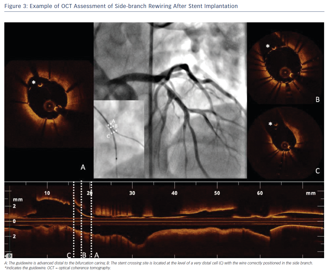 Example of OCT Assessment of Side-branch Rewiring After Stent Implantation