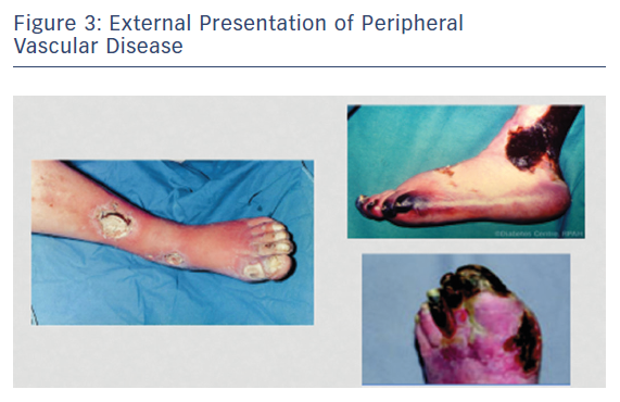 External Presentation of Peripheral Vascular Disease