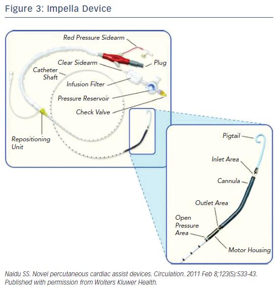 Figure 3: Impella Device