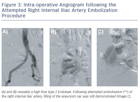 Intra-operative Angiogram following the Attempted Right Internal Iliac Artery Embolization Procedure