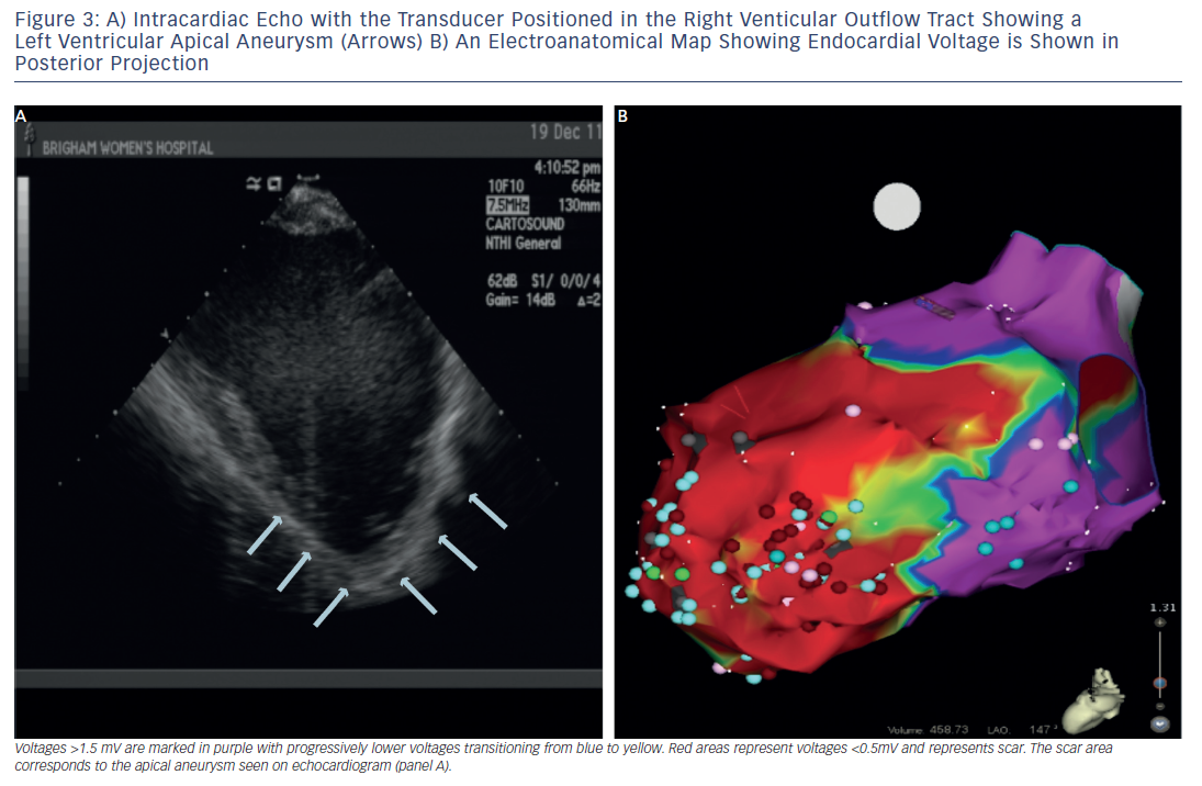 Figure 3: Intracardiac Echo with the Transducer Positioned