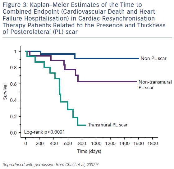 Figure 3: Kaplan–Meier Estimates of the Time to Combined Endpoint (Cardiovascular Death and Heart Failure Hospitalisation) in Cardiac Resynchronisation Therapy Patients Related to the Presence and Thickness of Posterolateral (PL) scar