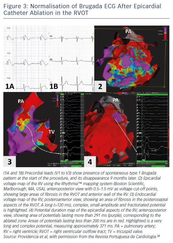 Figure 3: Normalisation of Brugada ECG After Epicardial Catheter Ablation in the RVOT