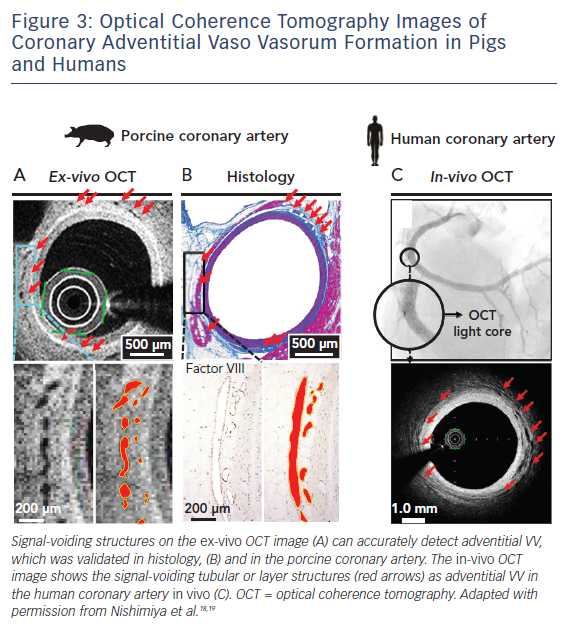 Figure 3: Optical Coherence Tomography Images of Coronary Adventitial Vaso Vasorum Formation in Pigs and Humans