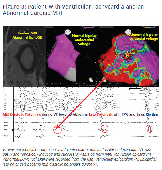 Patient with Ventricular Tachycardia & an Abnormal Cardiac MRI