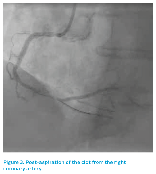 Figure 3. Post-aspiration of the clot from the right coronary artery