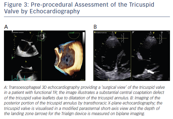 Figure 3: Pre-procedural Assessment of the Tricuspid Valve by Echocardiography