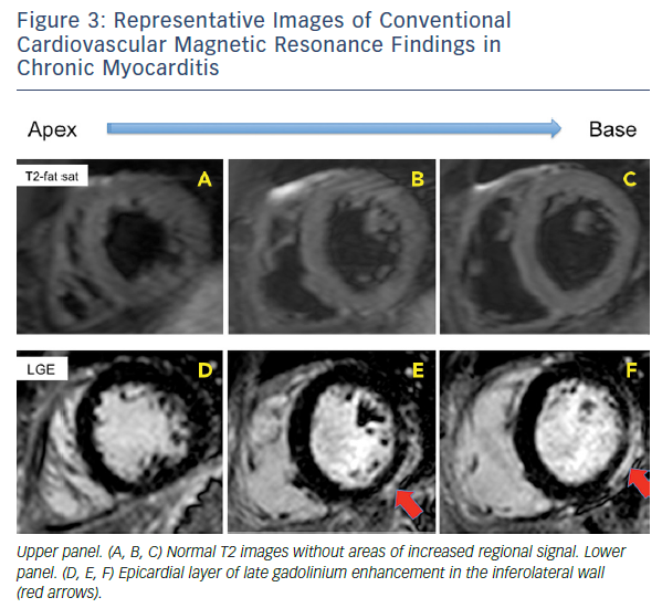 Figure 3: Representative Images Of Conventional Cardiovascular Magnetic Resonance Findings In Chronic Myocarditis
