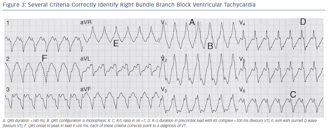 Figure 3: Several Criteria Correctly Identify Right Bundle Branch Block Ventricular Tachycardia