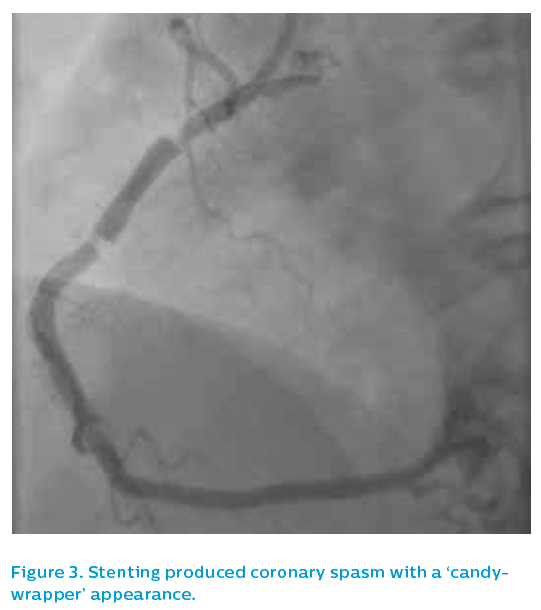 Figure 3. Stenting produced coronary spasm with a 'candywrapper' appearance