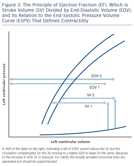 Figure 3: The Principle of Ejection Fraction (EF), Which Is Stroke Volume (SV) Divided by End-Diastolic Volume (EDV), and Its Relation to the End-Systolic Pressure-Volume Curve (ESPV) That Defines Contractility