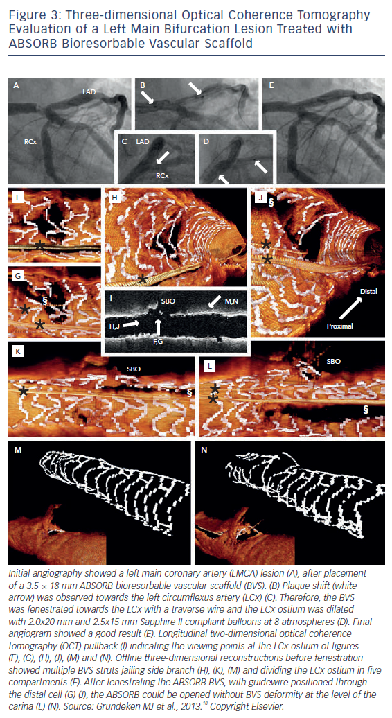Three-dimensional Optical Coherence Tomography Evaluation of a Left Main Bifurcation Lesion