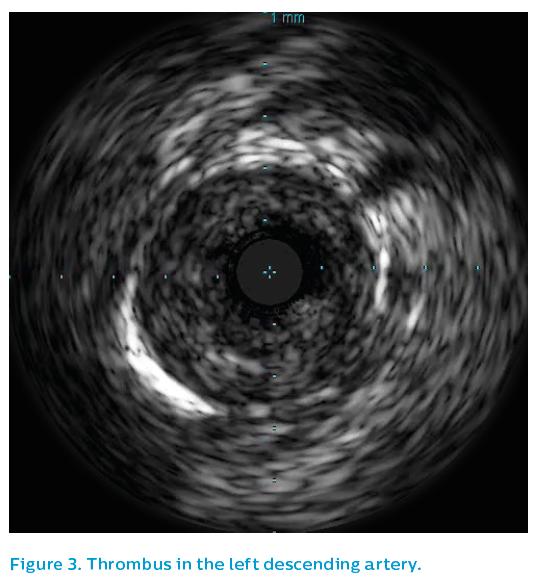 Figure 3. Thrombus in the left descending artery