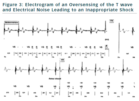 Figure 3: Electrogram of an Oversensing of the T wave and Electrical Noise Leading to an Inappropriate Shock