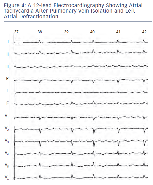 Figure 4: A 12-lead Electrocardiography Showing AtrialTachycardia After Pulmonary Vein Isolation and LeftAtrial Defractionation