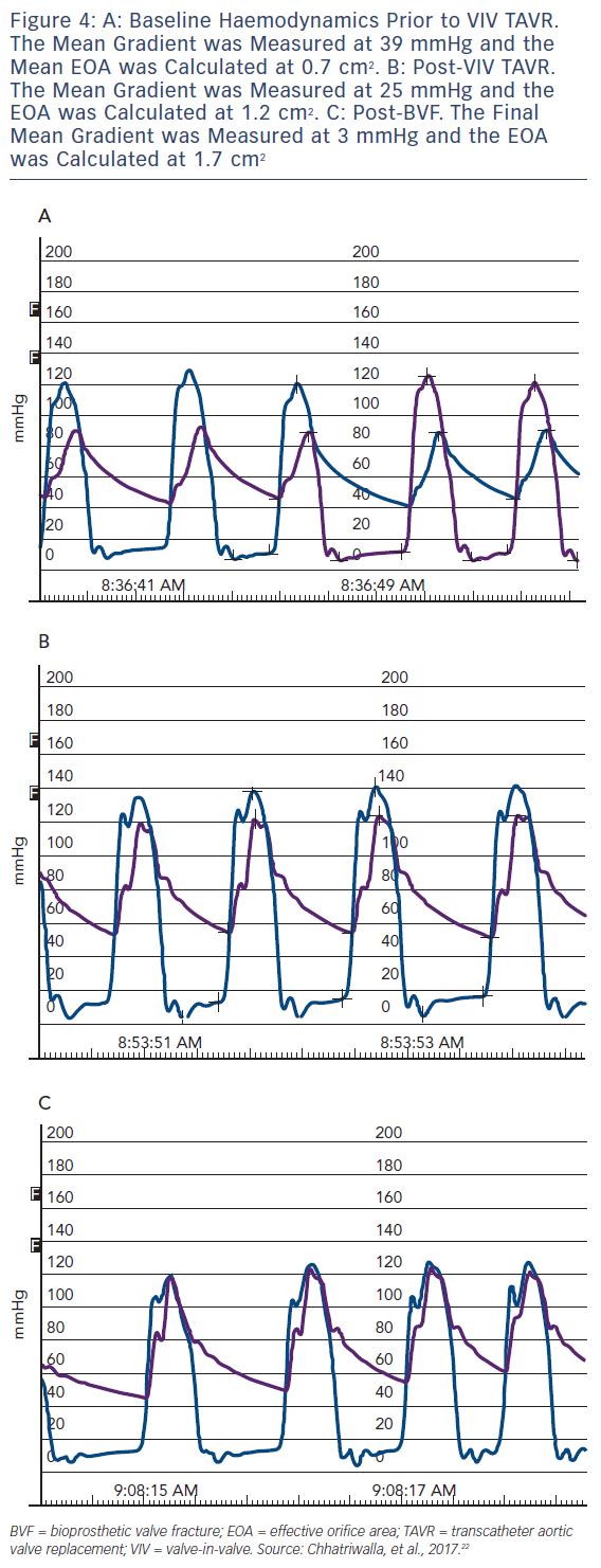 Figure 4: A: Baseline Haemodynamics Prior to VIV TAVR