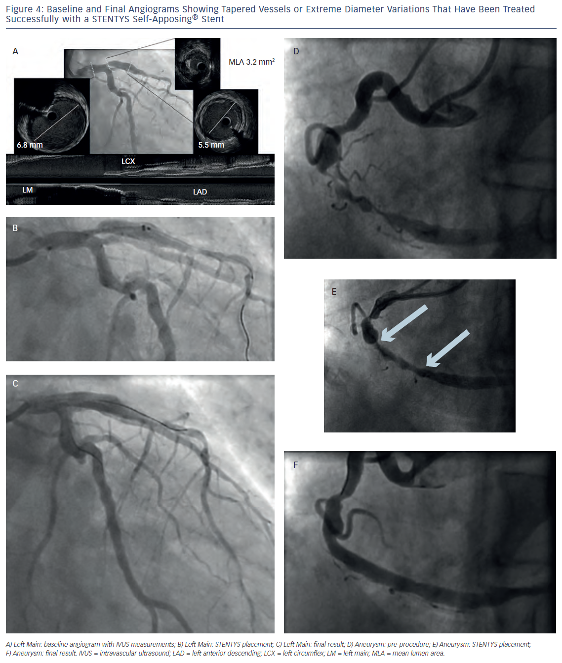 Figure 4: Baseline and Final Angiograms Showing Tapered Vessels or Extreme Diameter Variations That Have Been Treated Successfully with a STENTYS Self-Apposing® Stent