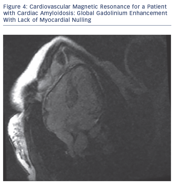 Cardiovascular Magnetic Resonance for a Patient with Cardiac Amyloidosis: Global Gadolinium Enhancement With Lack of Myocardial Nulling