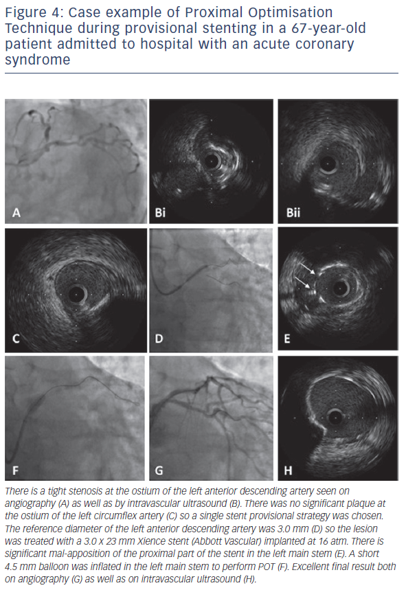 Figure 4: Case example of Proximal Optimisation Technique during provisional stenting in a 67-year-old patient admitted to hospital with an acute coronary syndrome