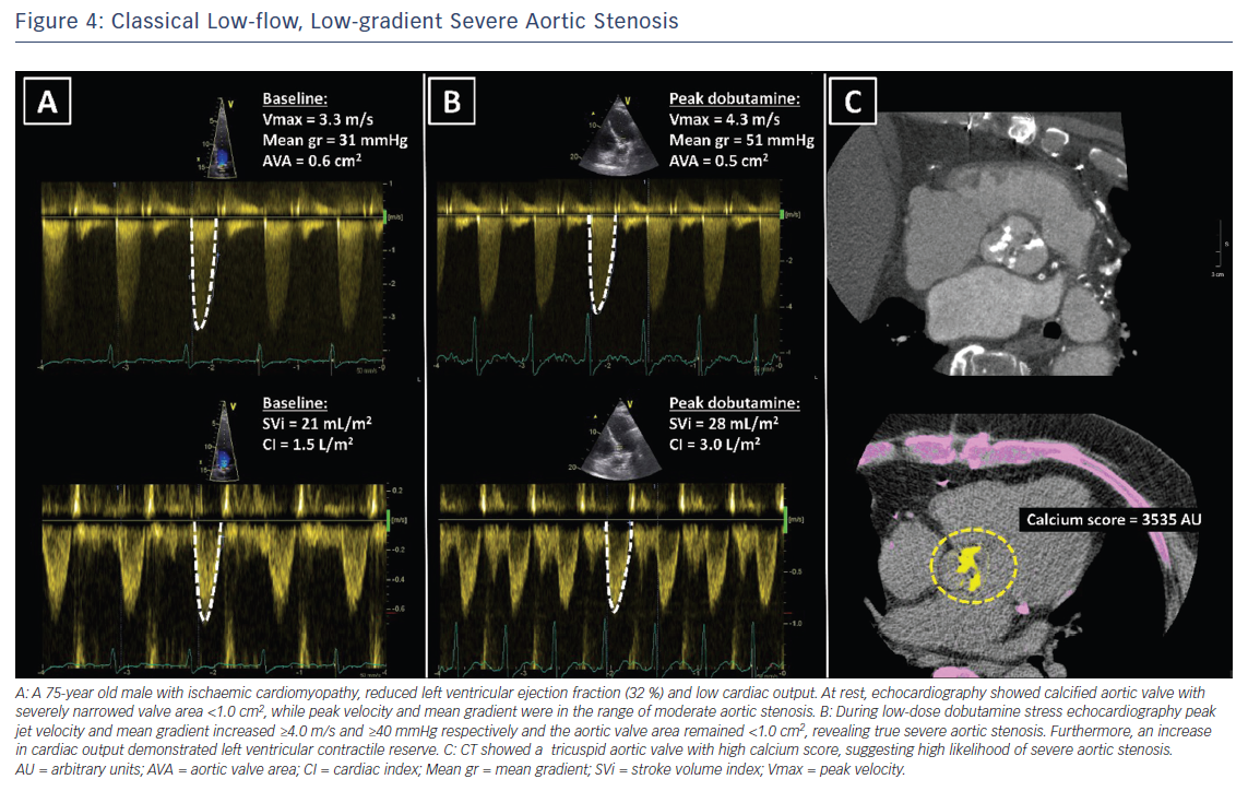 Figure 4: Classical Low-flow, Low-gradient Severe Aortic Stenosis