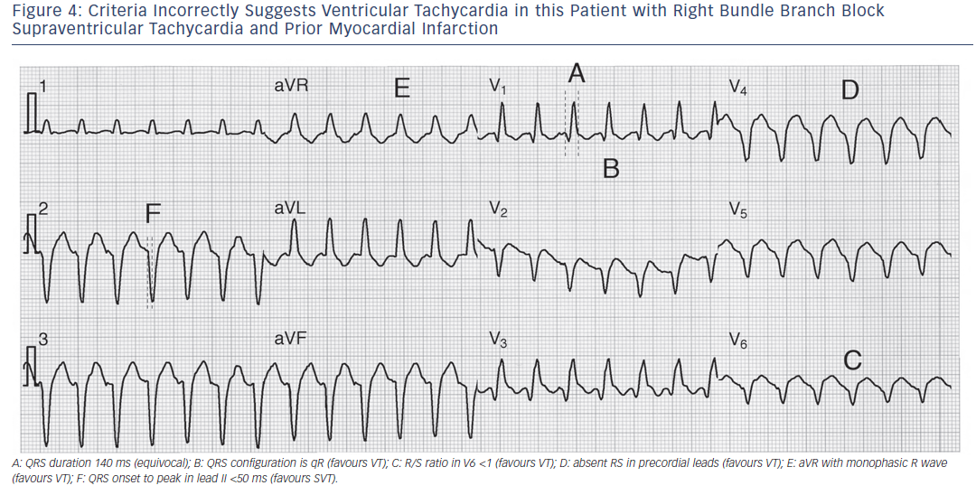 Figure 4: Criteria Incorrectly Suggests Ventricular Tachycardia in this Patient with Right Bundle Branch Block Supraventricular Tachycardia and Prior Myocardial Infarction