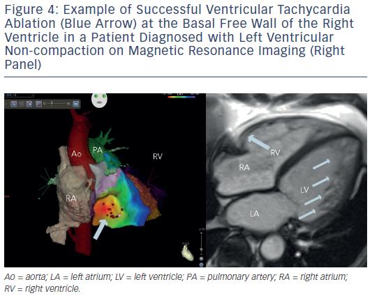 Successful Ventricular Tachycardia Ablation