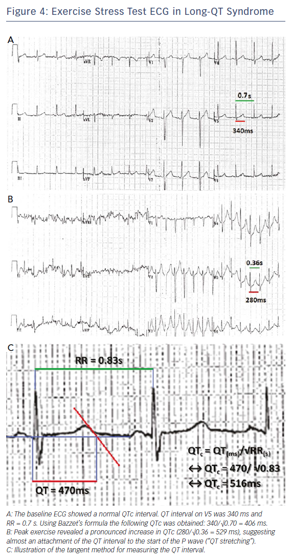 Figure 4: Exercise Stress Test ECG in Long-QT Syndrome