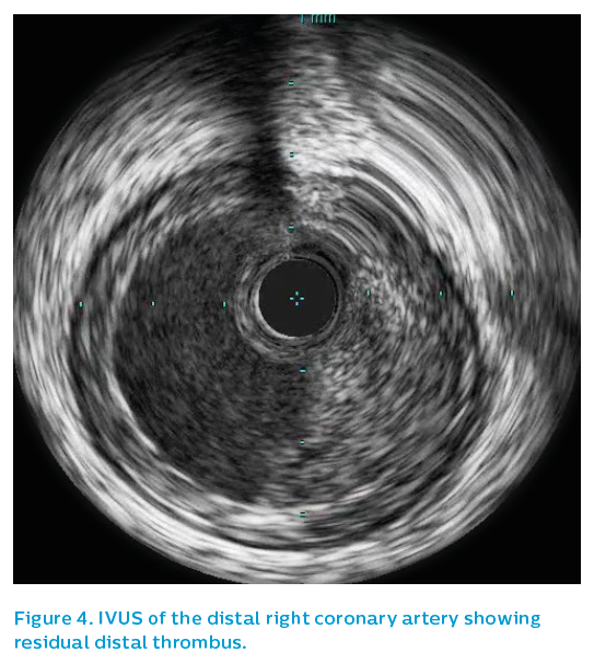Figure 4. IVUS of the distal right coronary artery showing residual distal thrombus