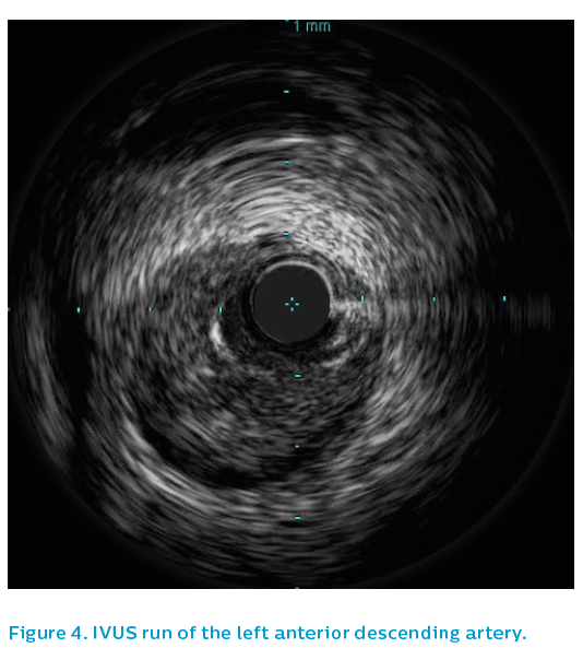 Figure 4. IVUS run of the left anterior descending artery