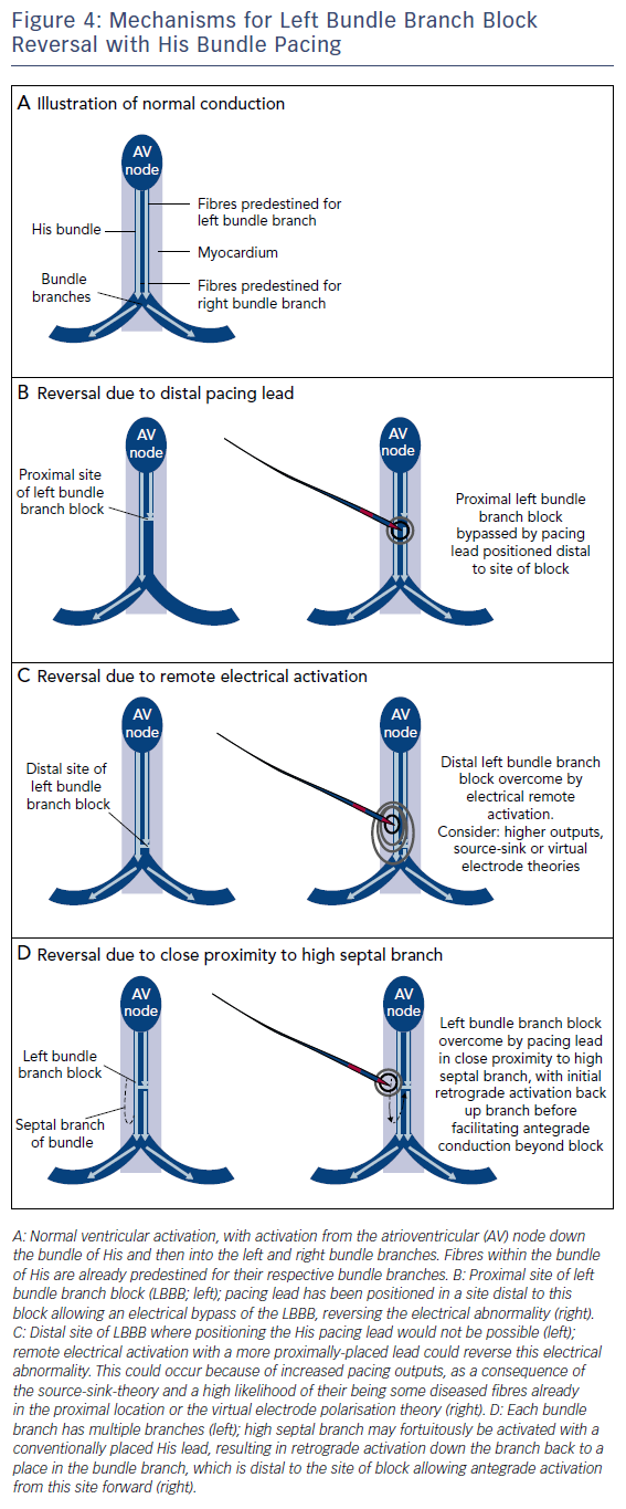 Figure 4: Mechanisms for Left Bundle Branch Block Reversal with His Bundle Pacing