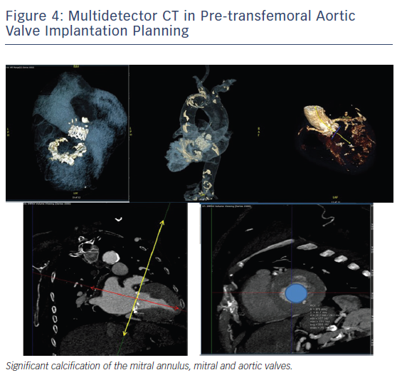 Figure 4: Multidetector CT in Pre-transfemoral Aortic Valve Implantation Planning