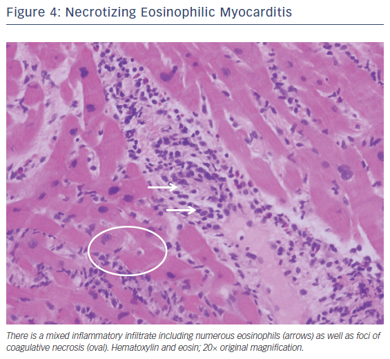 Figure 4: Necrotizing Eosinophilic Myocarditis