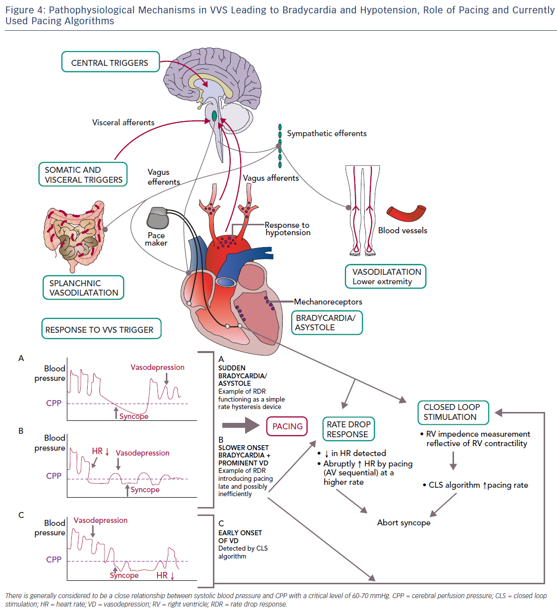 Figure 4: Pathophysiological Mechanisms in VVS Leading to Bradycardia and Hypotension, Role of Pacing and Currently Used Pacing Algorithms