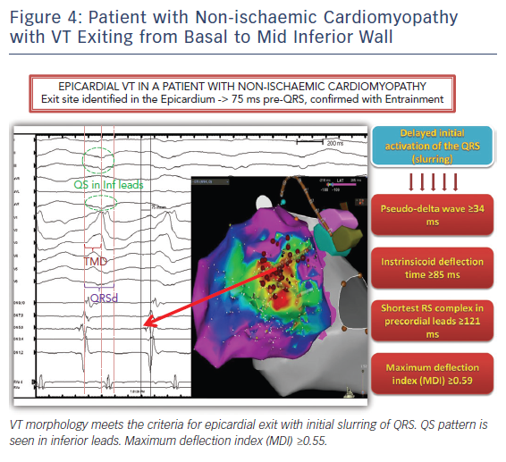 Patient with Non-ischaemic Cardiomyopathy