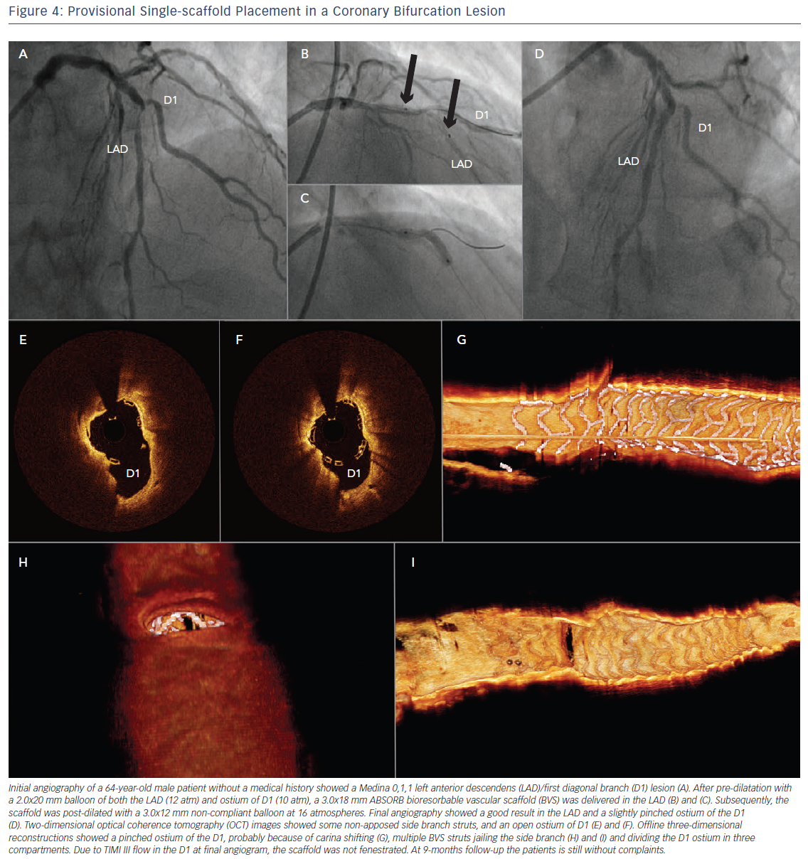 Provisional Single-scaffold Placement in a Coronary Bifurcation Lesion