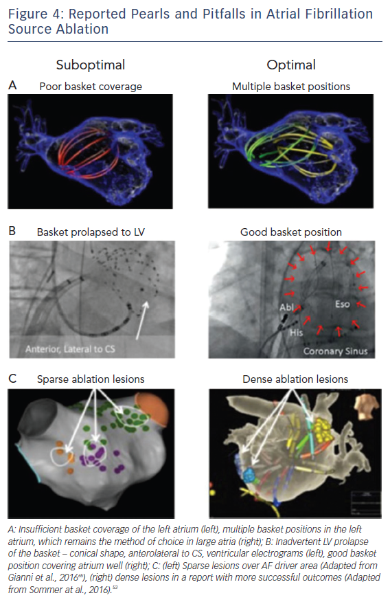 Figure 4: Reported Pearls and Pitfalls in Atrial Fibrillation Source Ablation