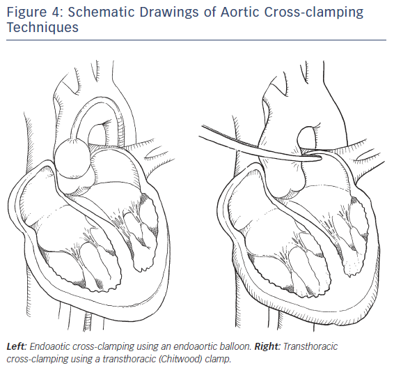 Figure 4: Schematic Drawings of Aortic Cross-clamping Techniques