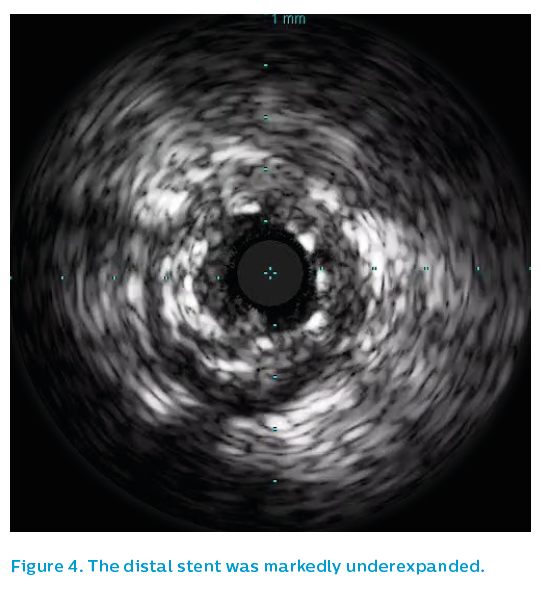 Figure 4. The distal stent was markedly underexpanded